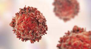 اعراض مرض السرطان -2