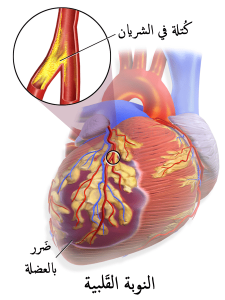 الجلطة القلبية -1