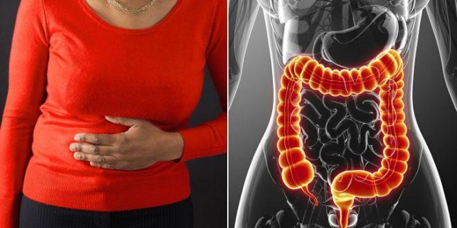 سرطان القولون أسبابه وأعراضه وطرق علاجه طبق