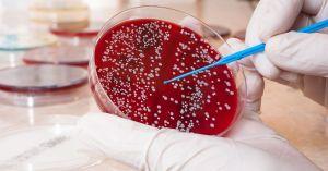 سرطان الدم -1