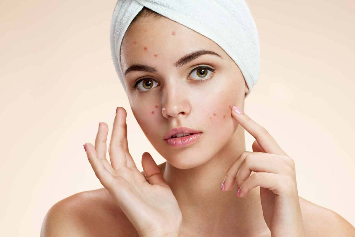 6 Home Remedies for Acne Scar Removal