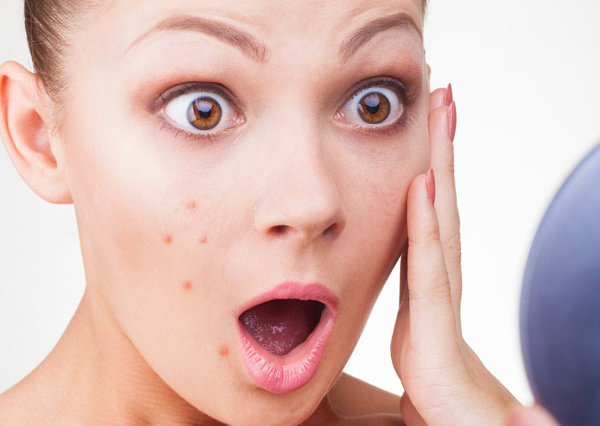8 Useful Tips for Natural Acne Treatment
