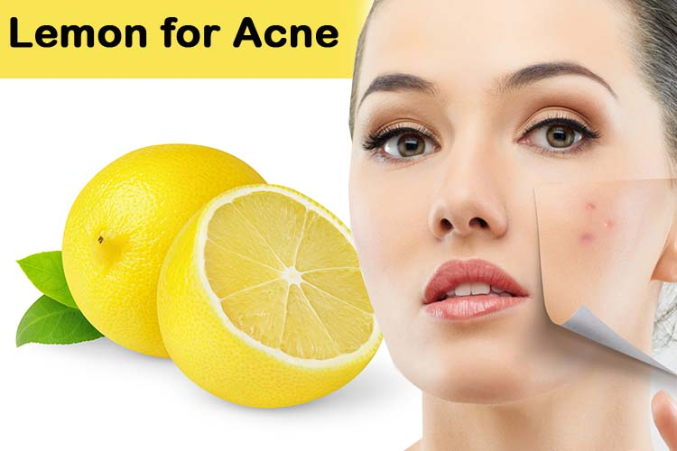 acne scar removal remedies