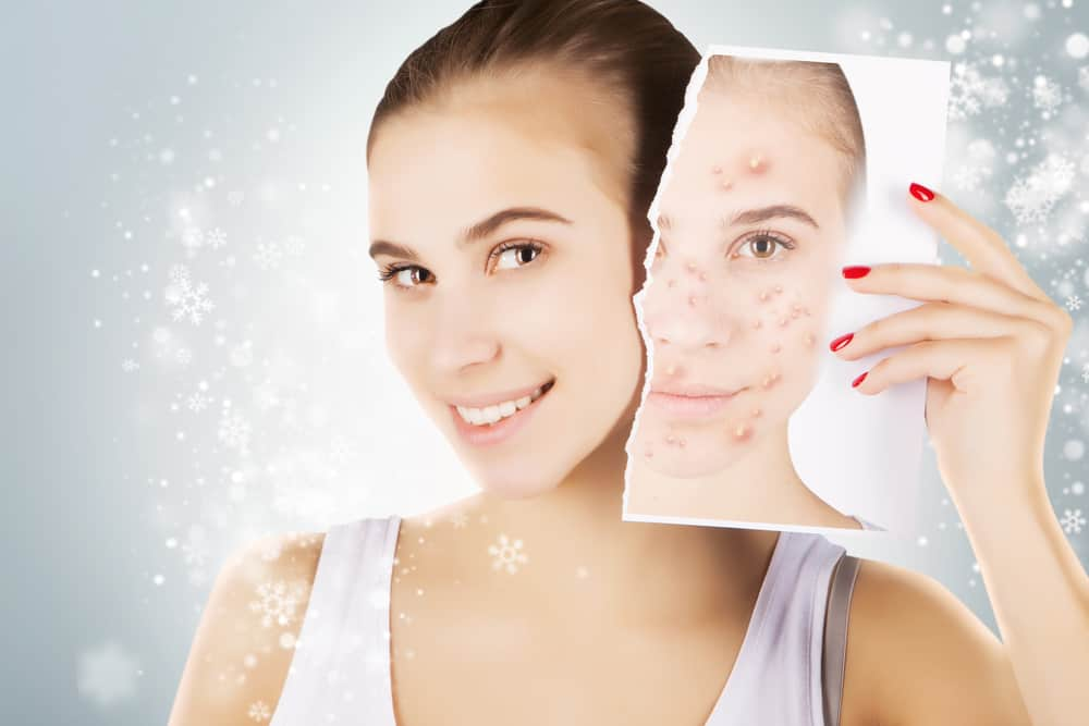 Now Acne Scar Treatment Is Not Difficult