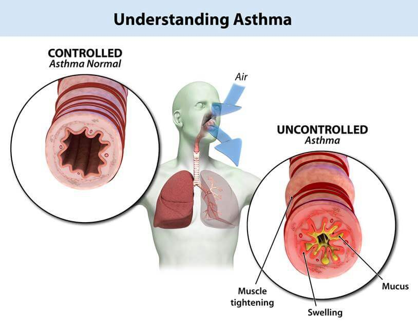 Asthma – An Overview - Tabib