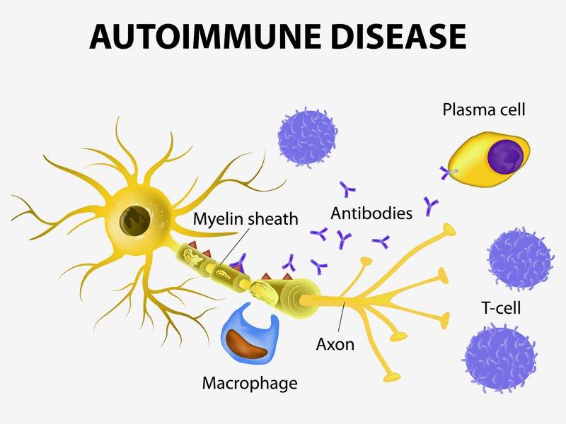 Autoimmune Disease - Tabib.pk