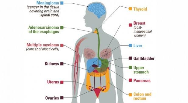 Types of Cancer - tabib.pk