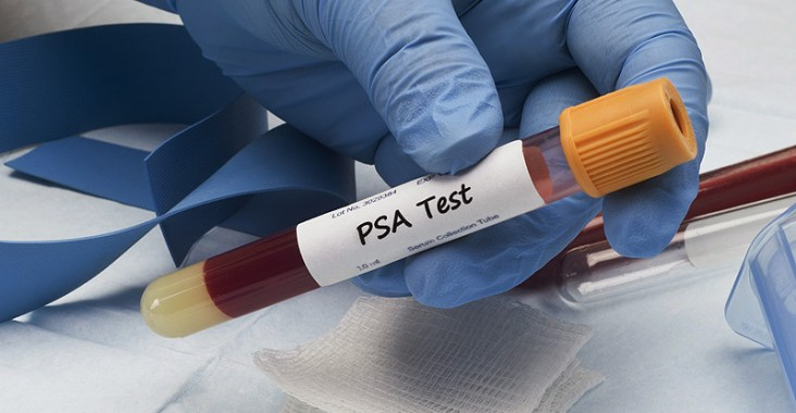 antigène prostatique spécifique