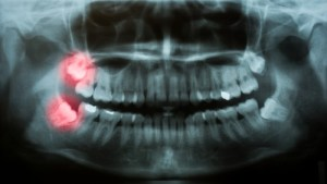 wisdom teeth in x-ray