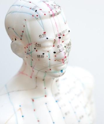 Akupunktur - behandling