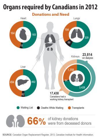 Body Donation in Canada