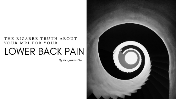 The Bizarre Truth About Your MRI for Your Lower Back Pain