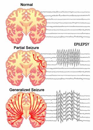 Seizures | Talking About The Science Bringing you the