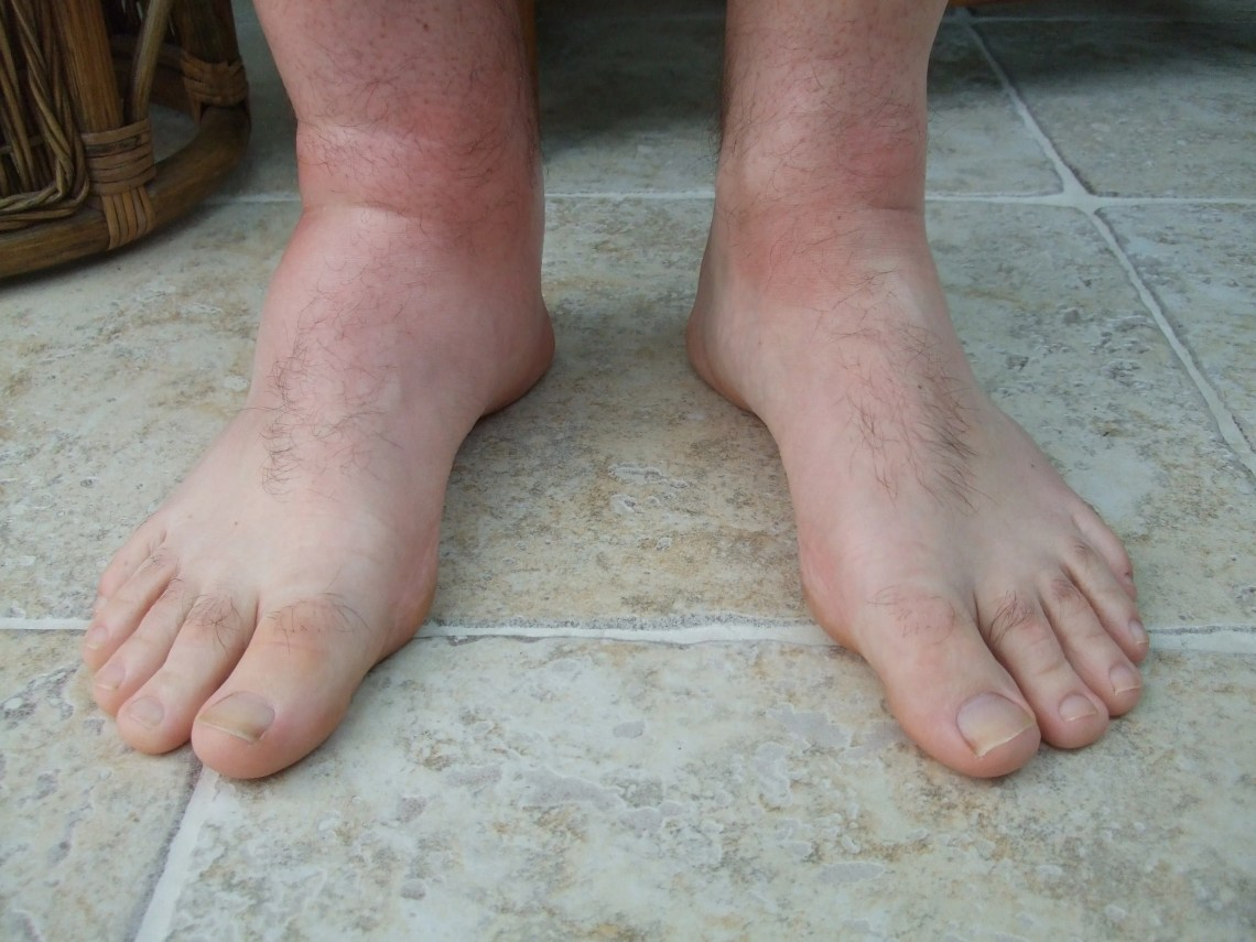 Image Result For Bee Sting Allergic Reaction Time Frame