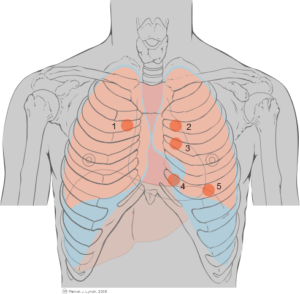 https://commons.wikimedia.org/wiki/File%3AThoracic_landmarks_anterior_view_heart_ausc.svg https://upload.wikimedia.org/wikipedia/commons/d/df/Thoracic_landmarks_anterior_view_heart_ausc.svg By Põnn [CC BY 2.5], via Wikimedia Commons