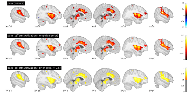 Neurosynth reverse inference z-scores and posterior probabilities. Top: z-scores for two-way association test. Middle: posterior probability of pain assuming an empirical prior. Bottom: posterior probability of assuming uniform prior (p(Pain) = 0.5).