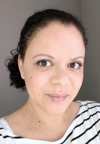 een fronsrimpel voorkomen met botox