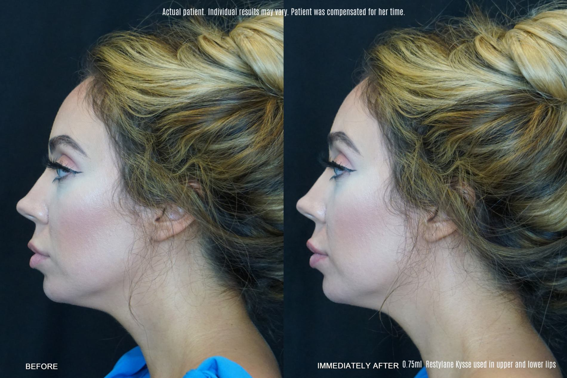 restylane kysse before and after