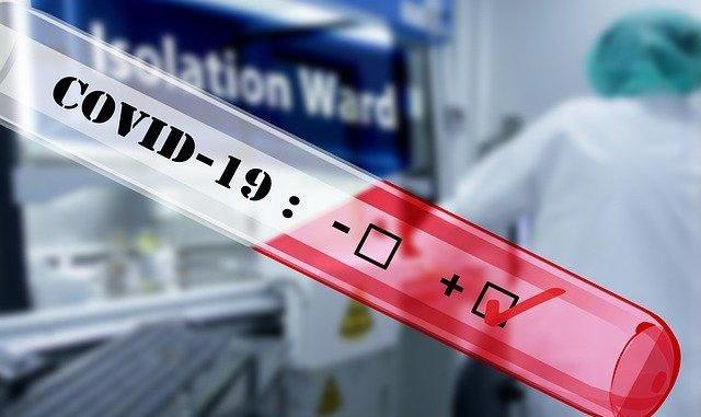 Montpellier. Le CNRS lance un test de dépistage rapide du Coronavirus