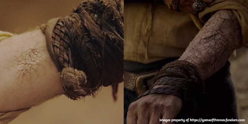5 Commonalities Between Game of Thrones and Foundation Repair - Greyscale and Foundation Settlement