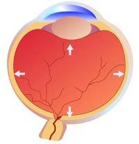 Лікування глаукоми - Тарус