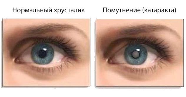 диабетическая катаракта