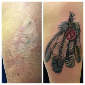 Tatuaje cicatriz plumas