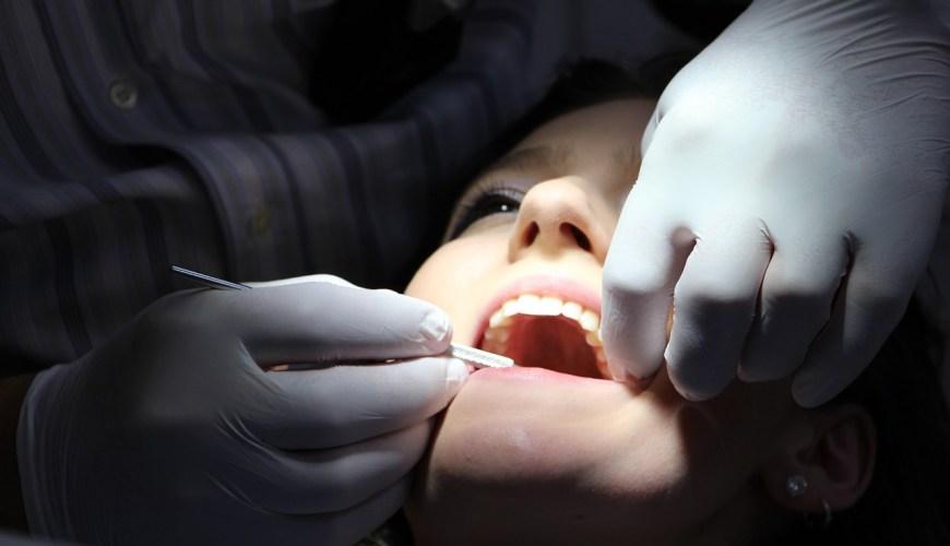 wisdom tooth removal, dentist in dubai, dubai blogger, wisdom tooth removal in dubai