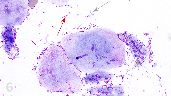 dog ear cytology slide rods and cocci