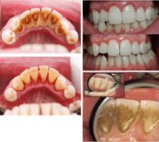burnos higienos privalumai
