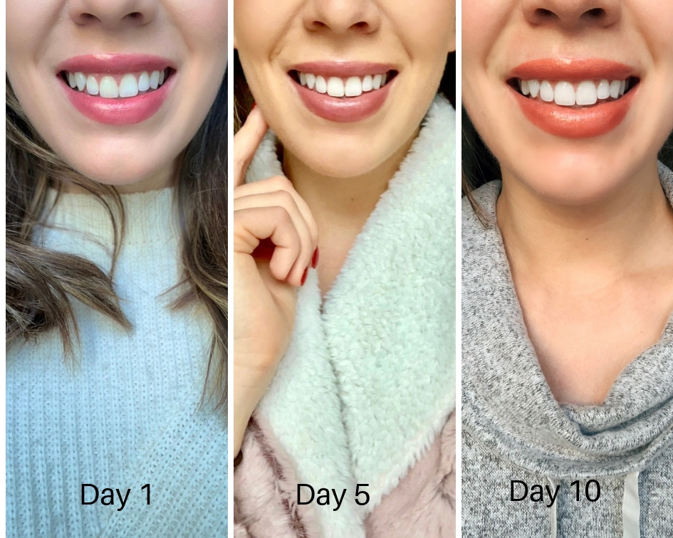 My Crest 3d Whitestrips Results And Complete Review Tayler Malott