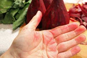 My Messy hands covered in beet juice.
