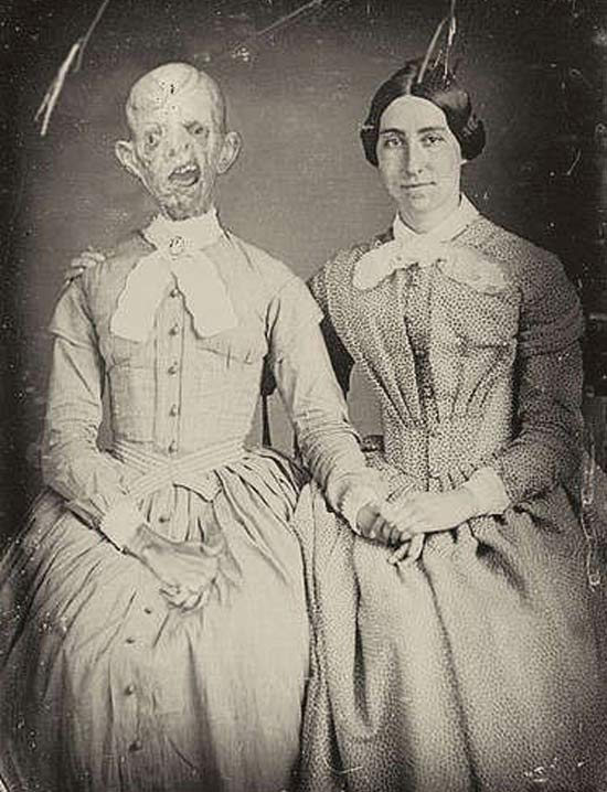 Vintage Portrait: Woman and Deceased Relative ~ 25 Creepy Photos
