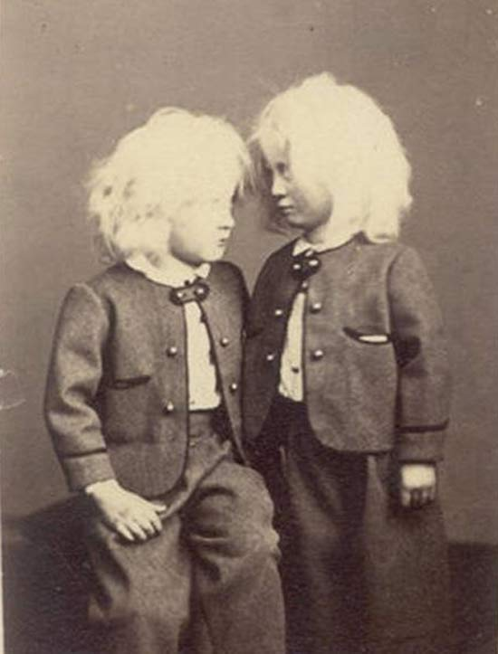 Vintage Albino Children Portrait ~ 25 Creepy Photos
