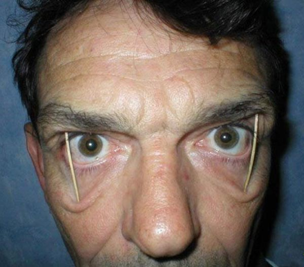 man with toothpicks holding his eyes open
