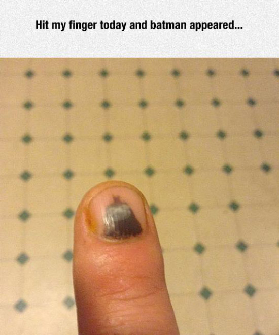 bruise on fingernail that looks like batman