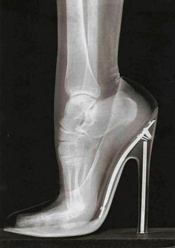 31 funny pics & Memes ~ X-ray of foot & ankle in high heels