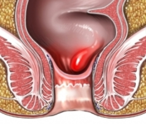 Hemorrhoid Home Treatment