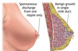 Nipple discharge