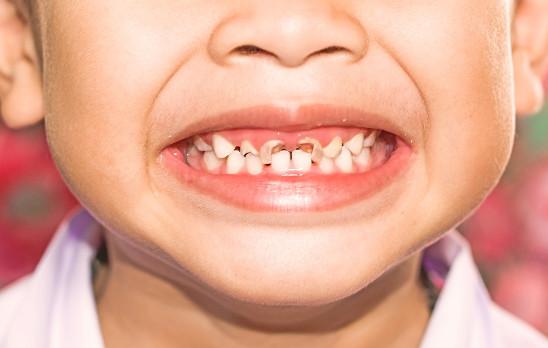 علاج تسوس الأسنان 3 خطوات عملية