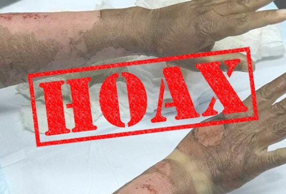 Hand Sanitiser Alcohol Catching Fire : Hoax Debunked!