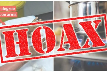 Fact Check : Hand Sanitiser Catches Fire, Burns Woman!