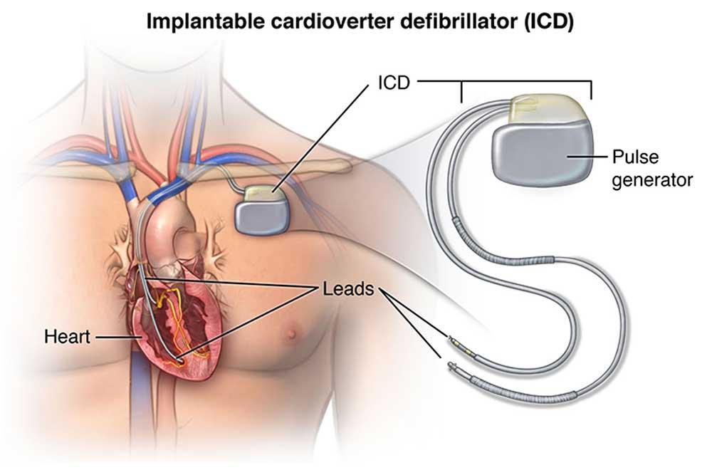 ICD Implantable Cardioverter-Defibrillator