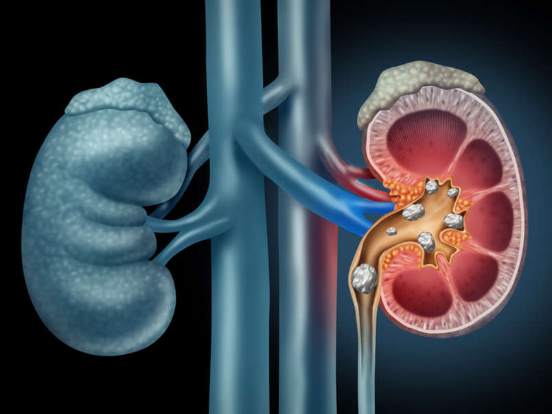How Can You Get Rid of Kidney Stones within a day in Bangalore?