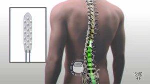 Implante eléctrico devolve mobilidade a homem paralisado