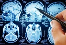Scientists are developing tech tool to help assess brain injury