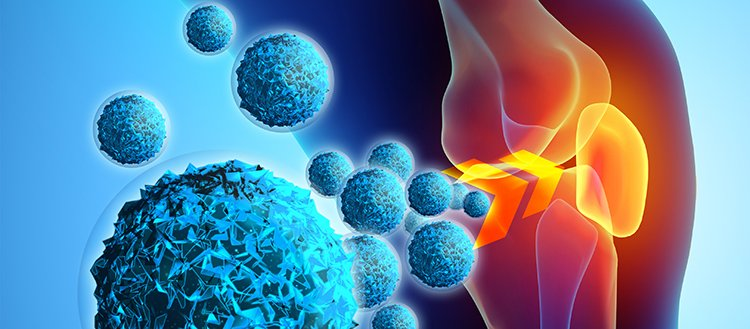 Nano and micro join forces to treat osteoarthritis
