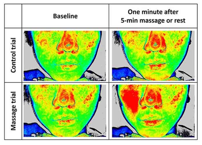 Visualization of changes in skin blood flow Imaging using laser-speckle flowgraphy revealed red colors, indicating higher skin blood flow, in the massaged area.