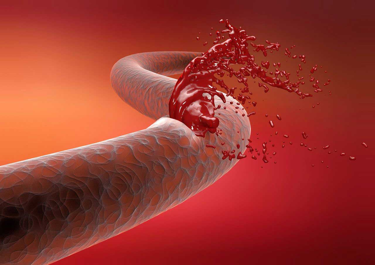 A hydrogel that can stop bleeding from an artery