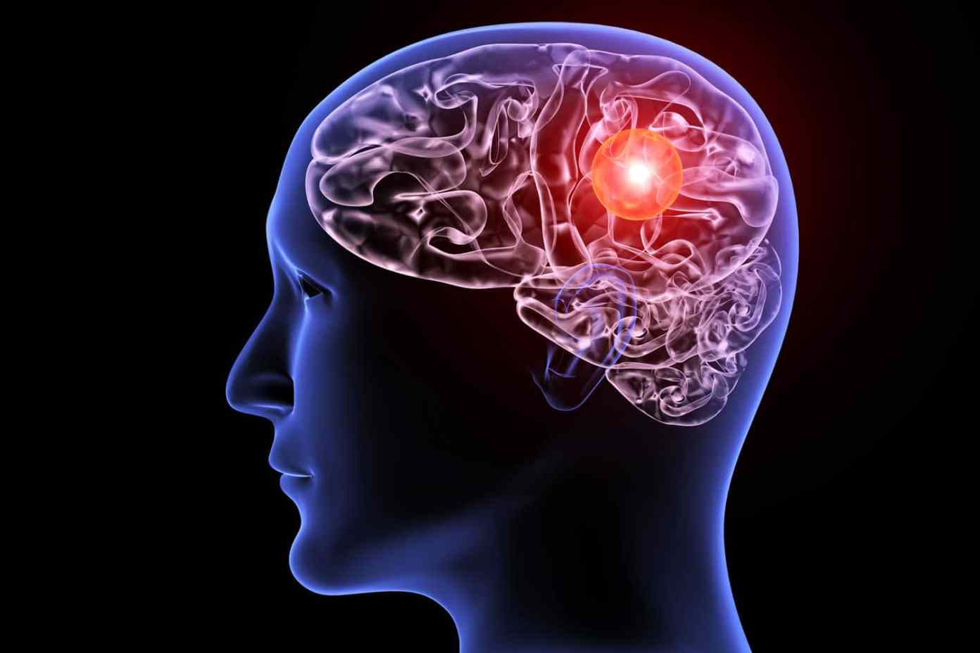 New artificial intelligence tool helps diagnose brain aneurysms